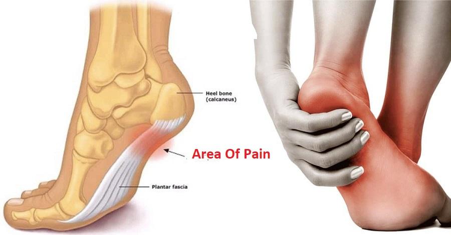 Hiking Boots For Plantar Fasciitis Heel Pain